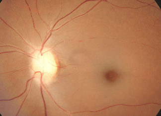 Central retinal artery occlusion cherry red spot