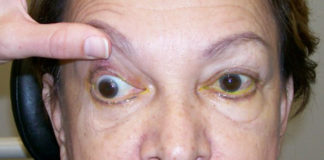 Complete pupil sparing cranial nerve palsy III from ischemic vascular disease