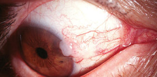 Conjunctival intraepithelial neoplasia