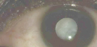 Intumescent cataract causing phacomorphic glaucoma