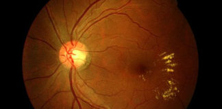 Macular telangiectasis and its resultant circinate exudative leakage