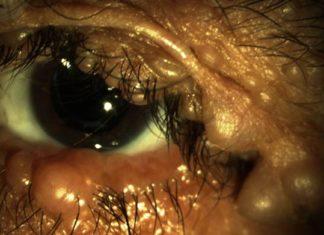 ocular-neurofibromatosis-featured