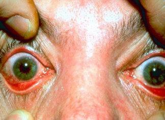 ocular-rosacea