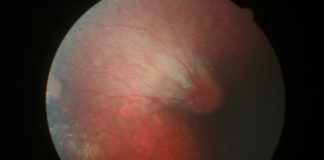 Retinopathy of prematurity exhibiting the classic dragged disc