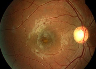 Solar retinopathy with foveal cysts