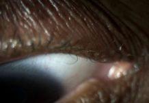 Trichiasis upper eyelid