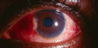 Uveitis Causing Glaucoma