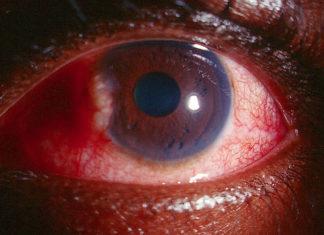 Uveitis Causing Glaucoma